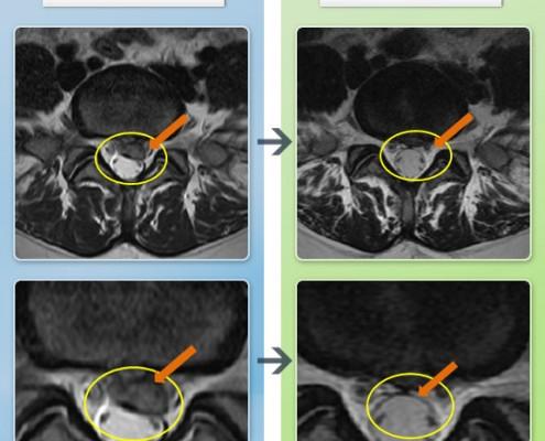 20100630_MRI_012