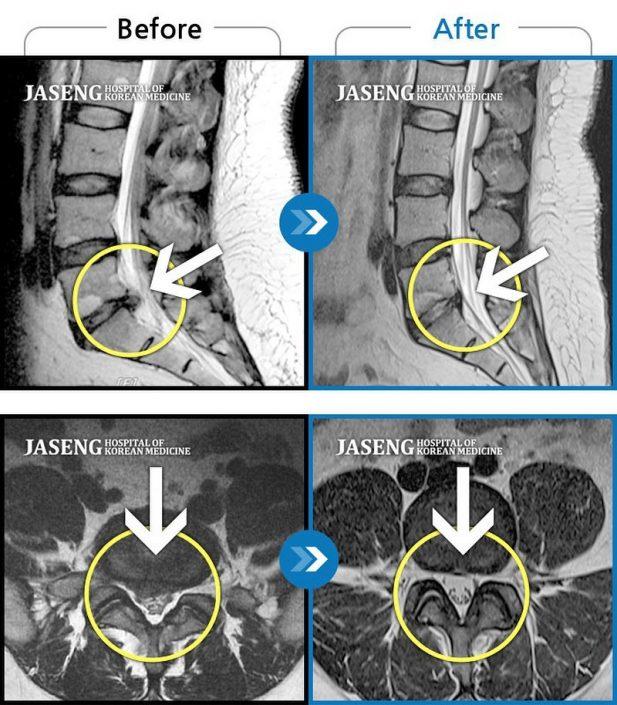 椎間板ヘルニア ヘルニア 頸椎 腰椎
