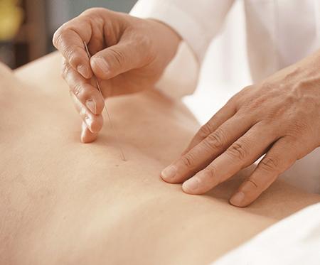 腰痛で鍼治療を受けた患者、手術の確率36%まで減少