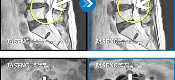MRI 椎間板ヘルニア すべり症 レントゲン X-ray 脊柱管狭窄症 腰痛